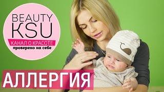 Пищевая аллергия или диатез у грудничков Beauty Ksu