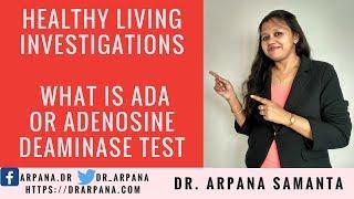 ADA Or Adenosine Deaminase Test : Healthy Living Investigations #40