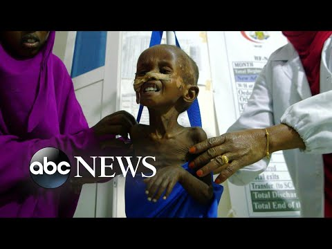 The race against time to save 20 million in Somalia, South Sudan, Nigeria and Yemen from starvation