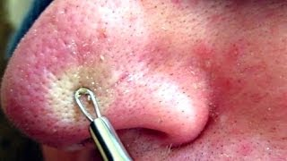 Repeat youtube video 4 of 4 Removing Blackheads & Whiteheads Using A Comedone Extractor Tool HD