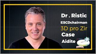 👑Excellent case presentation👑Made of 3D Pro zir by Dr Igor Ristic