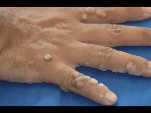 К какому врачу обращаться с папилломами