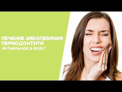 """Лечение периодонтита Минск  Стоматология """"Профидент"""" 2019 год."""