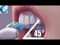 Hậu quả kinh hoàng cho răng vì thói quen đánh răng mà ai cũng mắc phải