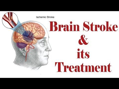 Ischemic Brain Stroke & Haemorrhagic Brain Stoke Treatment