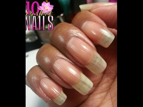 Nail Ridges? Treat Them W/ This Moisturizing Soak! - YouTube