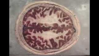 Inside the Brain: An Entire Head in Cross-Section