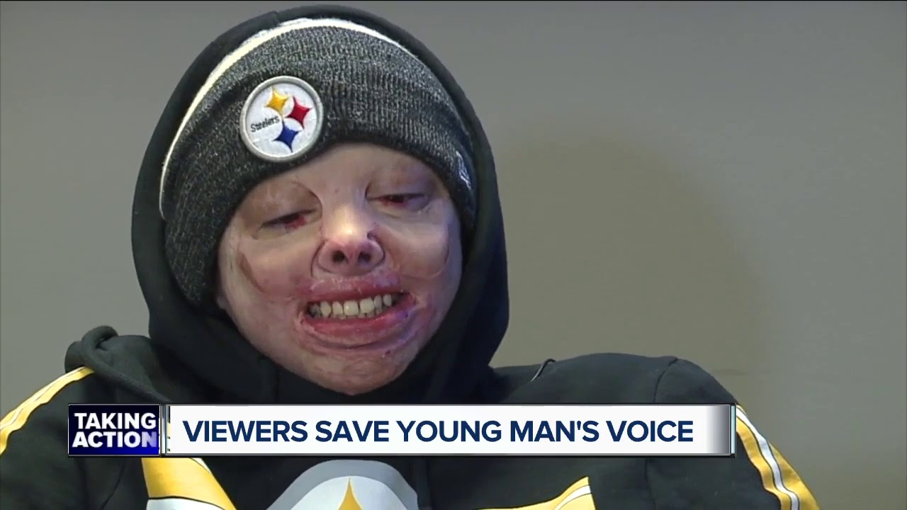 Viewers save young man's voice