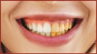 Jak szybko wybielić zęby *ŁATWE*