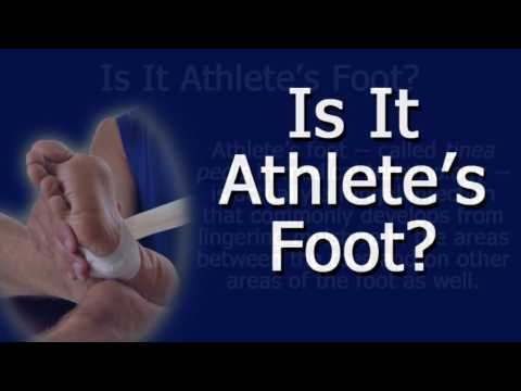 Is It Athlete's Foot?