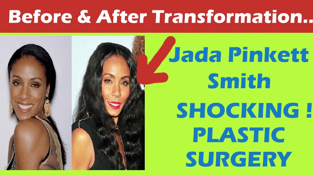 Jada Pinkett Smith Plastic Surgery Before And After Full