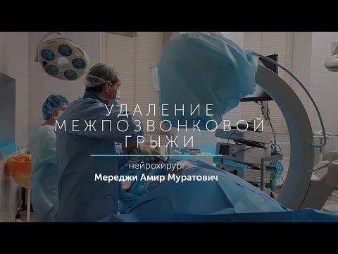 Эндоскопическая операция по удалению грыжи позвоночника. Нейрохирург Мереджи Амир Муратович