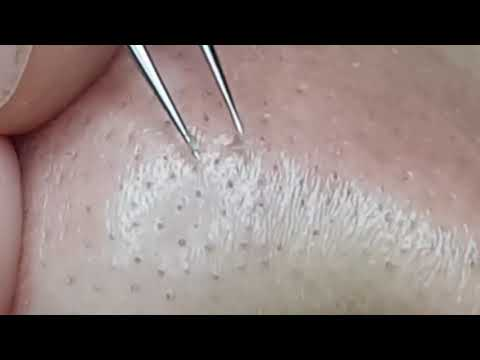 remove-small-blackheads-on-the-face-of-beauty-clinic