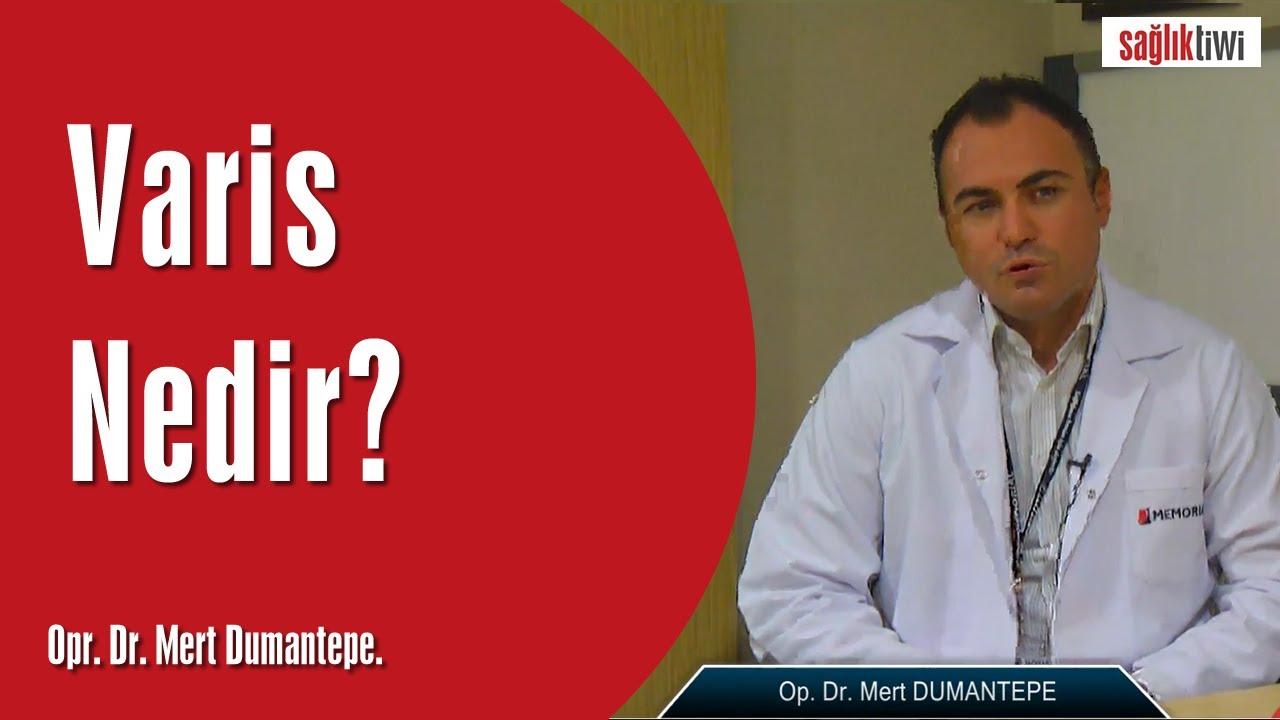 Varis Nedir?  SaglikTiwi  Opr. Dr. Mert Dumantepe