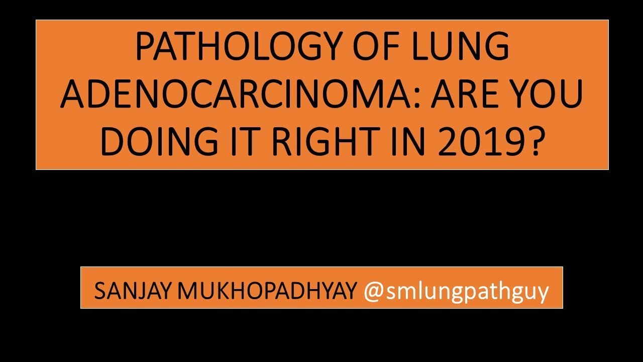 Pathologic Diagnosis of Lung Adenocarcinoma: Are You Doing it Right in 2019?