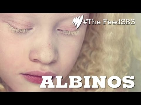 Albinos In Brazil I The Feed