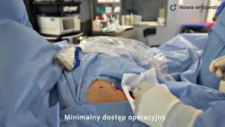 Małoinwazyjna tenodeza bicepsa  sonochirurgia Nowa Ortopedia