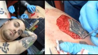 Nic Mann -Tattoo Removal *watch with caution* Graphic