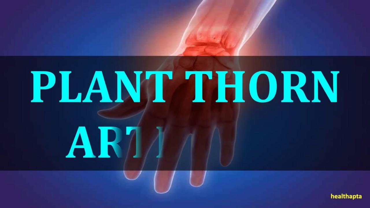 Arhanghelsk tratamentul coloanei vertebrale