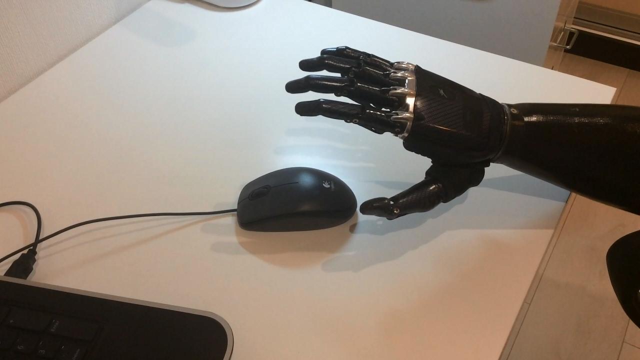 Протез руки напечатанный на 3d принтере (the prosthesis hand printed on. Массовый протез