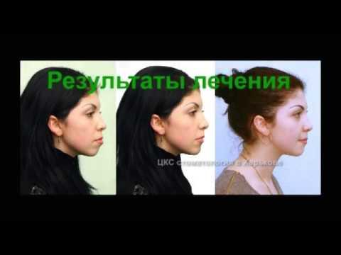 Как зубы влияют на внешность
