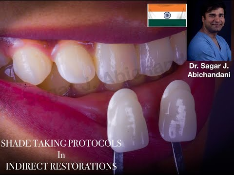 Shade Taking Protocols in Indirect Restorations:Simplified Shade Selection steps In Dental Office