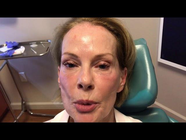 Dallas Botox Testimonial & Education