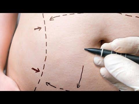 Хирургические методы лечения ожирения