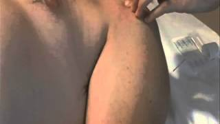 Acupuncture for Rotator Cuff Symptoms