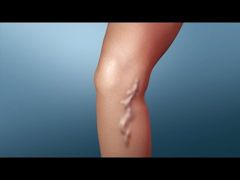 Treatment for Varicose Veins | Nucleus Health