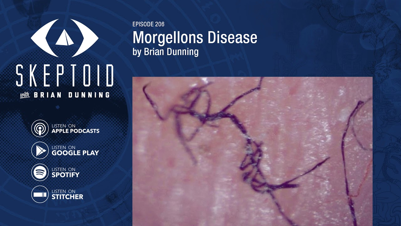 Margelons disease: does it exist