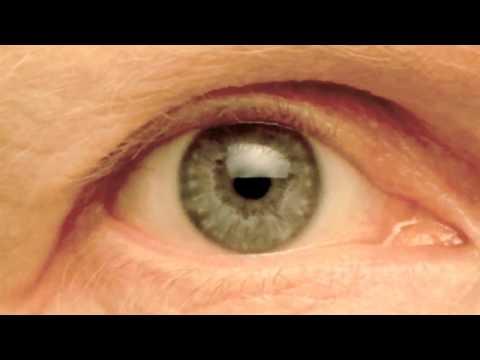 My Right Pupil Exhibiting:   Hippus / Pupillary Athetosis (1/3 actual speed)