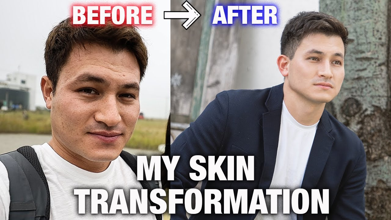 HOW I TRANSFORMED MY SKIN | MENS GLOW UP KOREAN SKINCARE ROUTINE