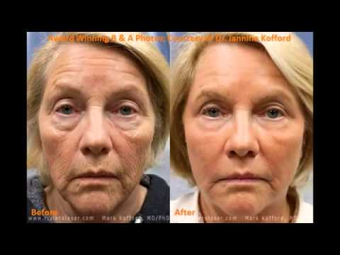 MiXto Pro Fractional CO2 Laser - Experience the Magic