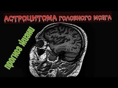 Костно пластическая ТРЕПАНАЦИЯ ЧЕРЕПА после удаления АСТРОЦИТОМЫ головного мозга на расшифровке МРТ
