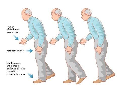 abordaje-y-diagnostico-del-temblor---parkinsonico-1parte