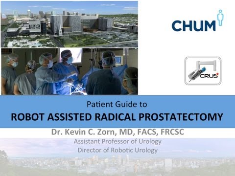 ROBOTIC RADICAL PROSTATECTOMY - RARP- FULL SURGICAL CASE- PATIENT EDUCATION- Dr. KEVIN ZORN