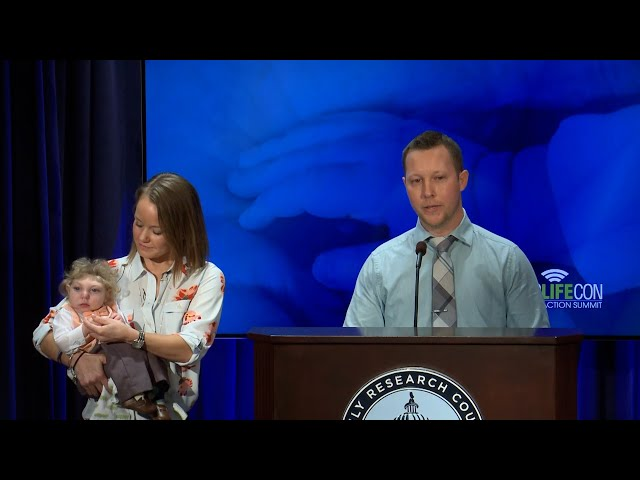 Brandon Buell Shares the Story of His Son Jaxon - Born with Microhydranencephaly