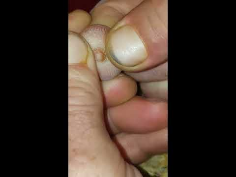Finger Fuck Pictures 10