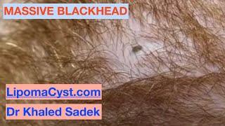 MAASIVE Blackhead. Dr Khaled Sadek. LipomaCyst.com