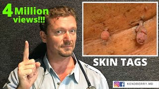 What SKIN TAGS Really Mean  (Does your Doctor know?)