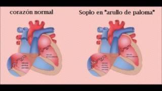 Circulatorio algunas sistema enfermedades del