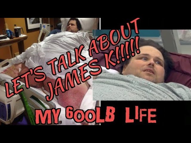 My 600lb Life James K....Let\'s Review, Recap, Discuss It. My Thoughts & Input