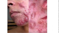hqdefault - Nodular Cystic Acne Photos