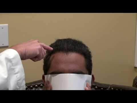 hair-transplant-san-francisco-bay-area-&-near-san-jose-california-bald-hair-loss-solution