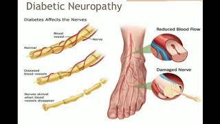Tugas remedial neurologi Yang disusun oleh : - Diah rachmawati J500170085 - Nandya herdians J5001700.