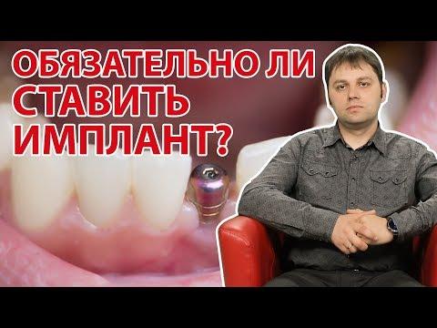 Если нет зуба, обязательно ли ставить имплант? | Вопрос Доктору