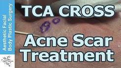 hqdefault - Tca Cross Acne Scar Removal