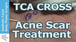 80% Tricholoroacetic Acid for Ice Pick Scars: TCA CROSS Method