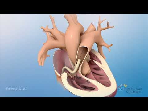 Tetralogy Of Fallot (TOF): Animation Explains Heart Defect And Repair
